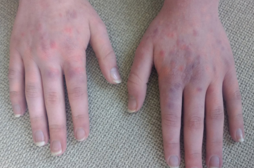 Allergic Reaction to Laundry Detergent Last