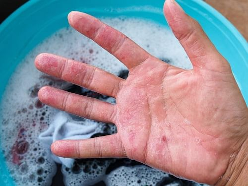 How to Treat Chemical Burns from Laundry Detergent